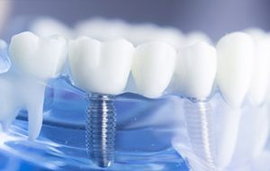 Dental Implants – Today's Long-Term Solution of Replacing Missing Teeth